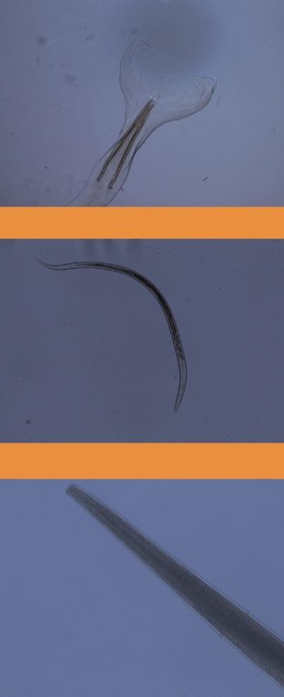 Dall'alto: maschio di Ostertagia ostertagi; ecco come si presenta una larva L3; una femmina di Ostertagia ostertagi