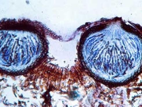 Ticchiolatura melo, venturia inequalis, ascomiceti al microscopio