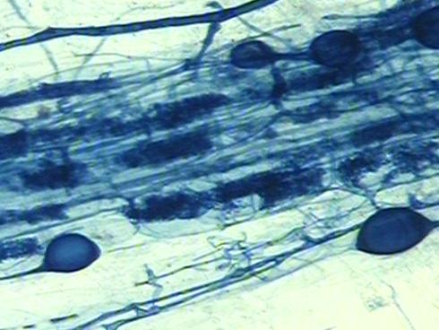 Una radice di grano duro micorrizata al microscopio ottico
