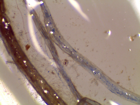 Radici micorrizate